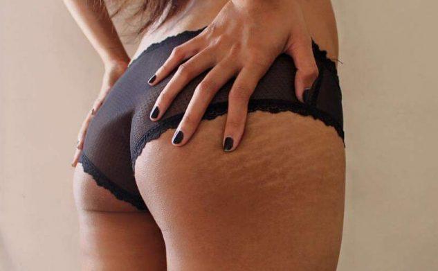 Striae: fabels en feiten over huidstriemen
