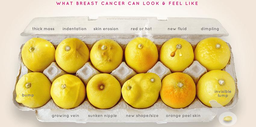 borstkanker zelfonderzoek (1)